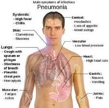 Fakta, Gejala dan Penyebab Pneumonia
