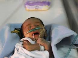 Polusi Udara Menyebabkan Bayi Lahir dengan Berat Badan Rendah