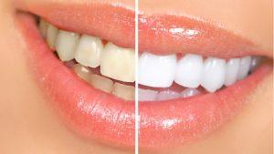 Fluoride dalam Air Minum Dapat Mencegah Kerusakan Gigi