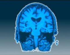 Ditemukan Cara Baru untuk Mendiagnosis Penyakit Parkinson