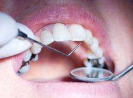 Bahaya Tambalan Gigi Amalgam yang Mengandung Merkuri